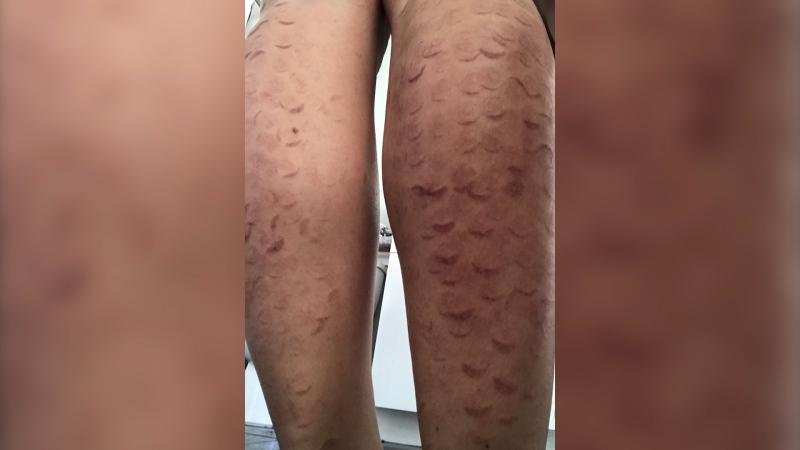 Laser Hair Removal Left Exotic Dancer With Unsightly Marks Lawsuit Alleges