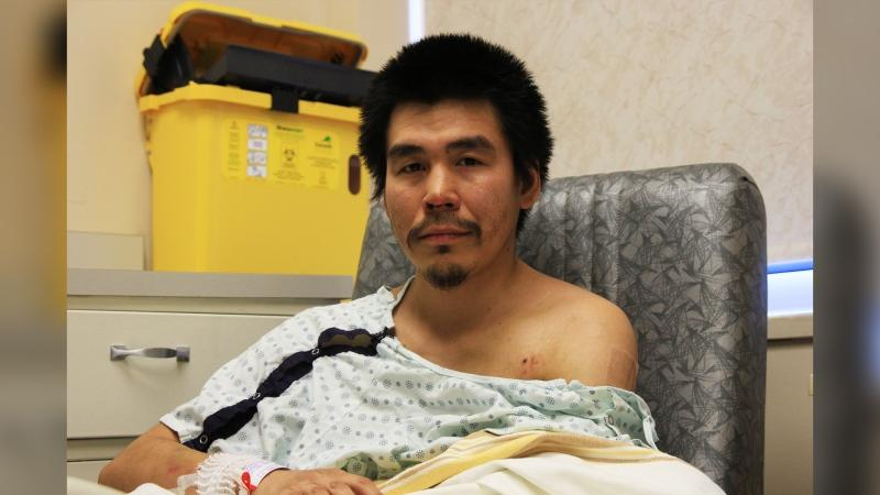 Daniel Anowak is recovering at the Health Sciences Center in Winnipeg. (Source: Danton Unger/ CTV News Winnipeg)