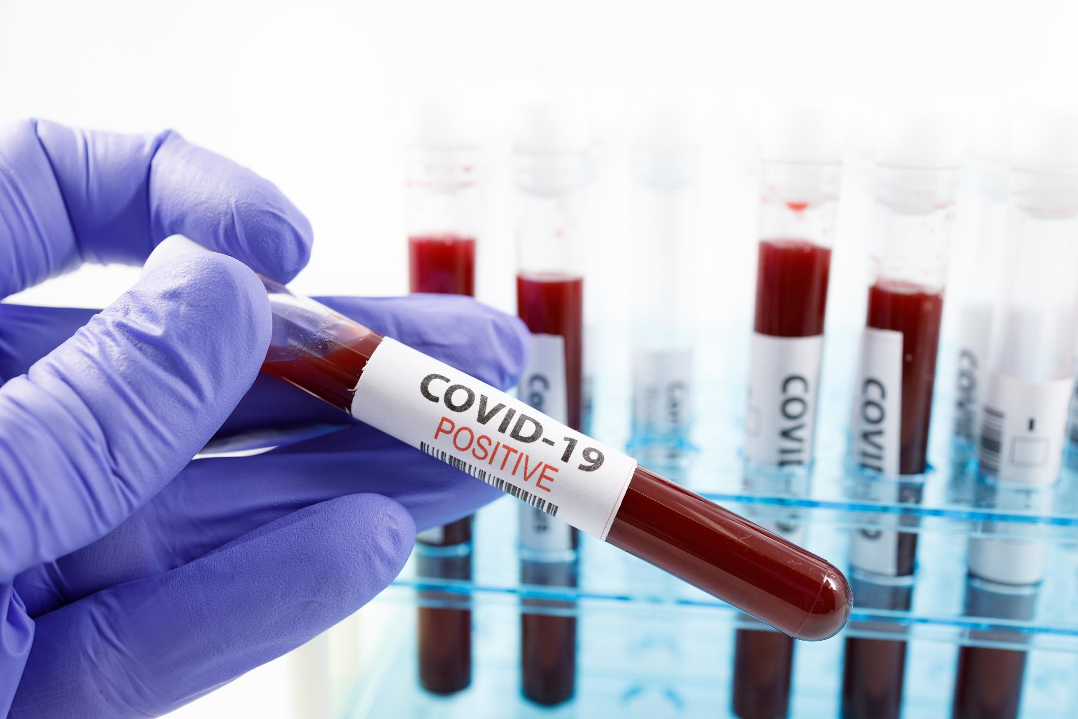 AM800-News-COVID-19-Coronavirus-Testing-Gloves-Positive Test