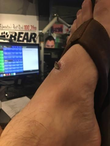 My Scab (Warning: This content is extremely gross)