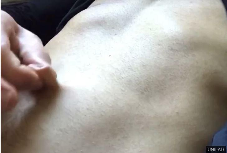 Huge Outie Belly Button